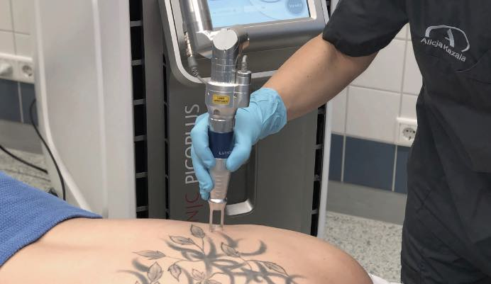 Tattooentfernung Bochum
