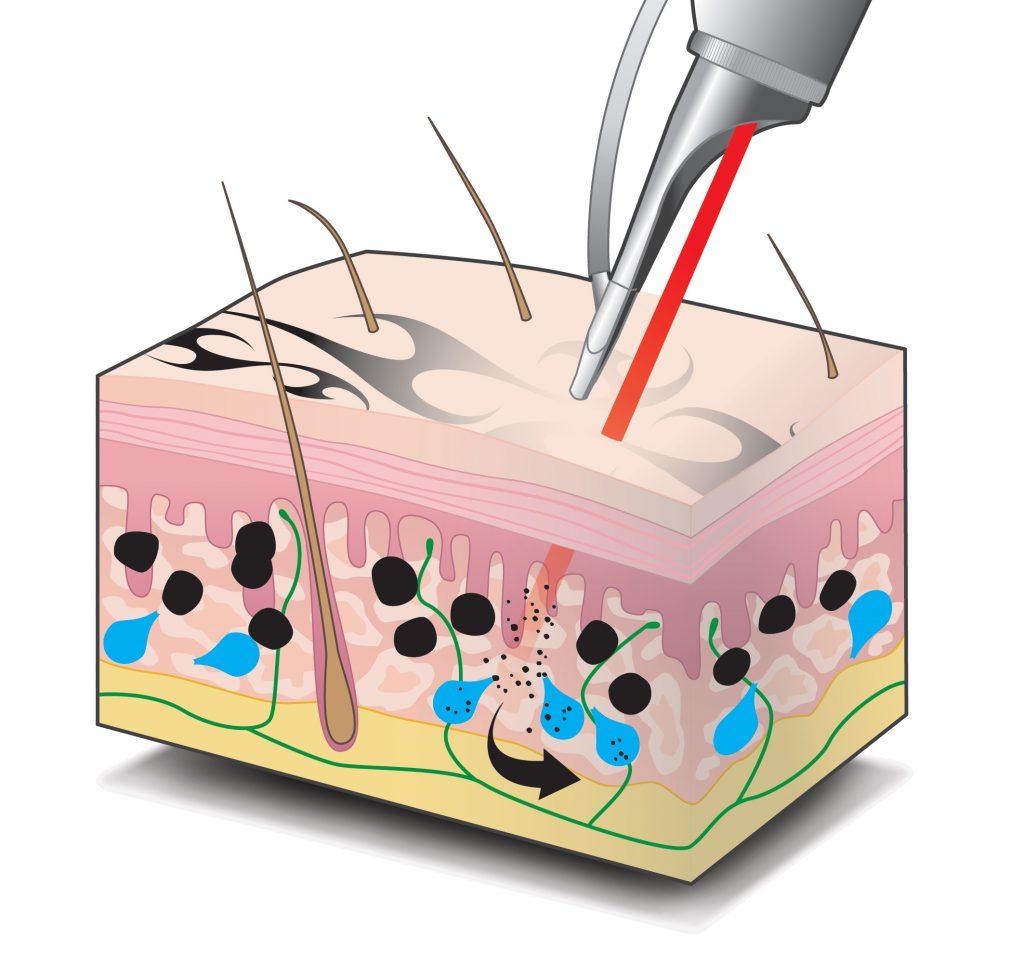 Laserbehandlung eines Tattoos