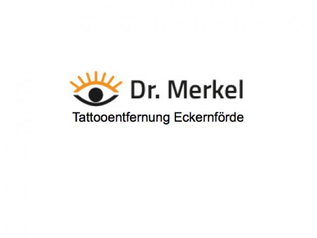 Tattooentfernung Eckernförde