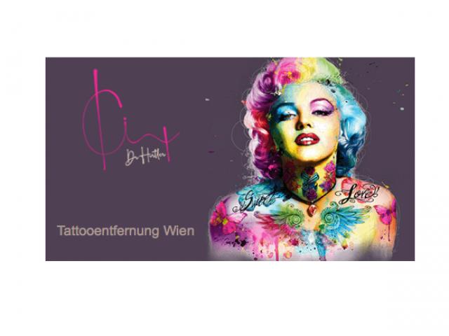 Tattooentfernung Wien