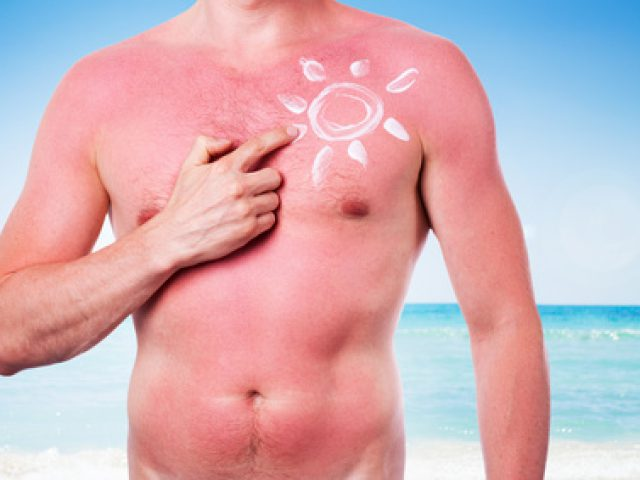 Fakten zum Thema Sonnenschutz für die Haut